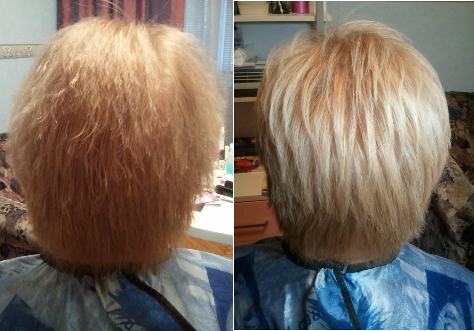 Рубен хаир пересадка волос с тела